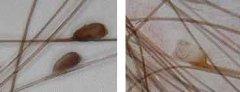 多长时间洗一次头才不长虱子 如何保养秀发