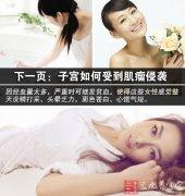 子宫肌瘤的症状 子宫肌瘤是否影响生育